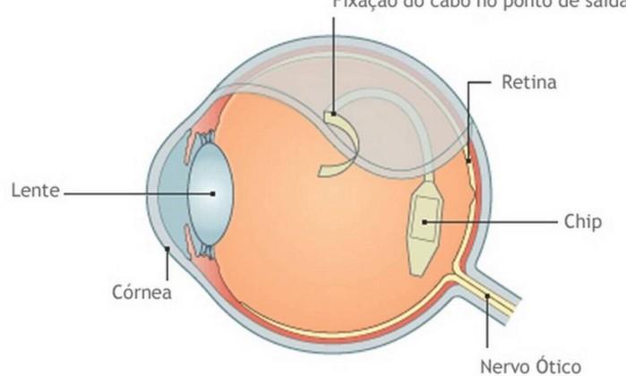 O-chip-ajudou-cegos-a-enxergar.-Foto-Reproducao